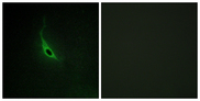Immunofluorescence of HepG2 cells, using ARHGEF17 antibody.