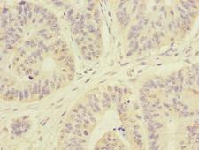 ARHGEF3 / XPLN Antibody - Immunohistochemistry of paraffin-embedded human colon cancer at dilution 1:100