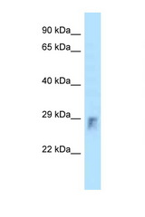 RHOU antibody Western blot of Small Intestine lysate. Antibody concentration 1 ug/ml.  This image was taken for the unconjugated form of this product. Other forms have not been tested.