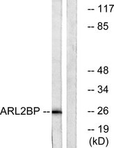 Western blot analysis of lysates from A549 cells, using ARL2BP Antibody. The lane on the right is blocked with the synthesized peptide.
