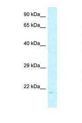 ARL6IP1 / ARMER antibody Western blot of MCF7 Cell lysate. Antibody concentration 1 ug/ml.  This image was taken for the unconjugated form of this product. Other forms have not been tested.