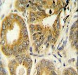 ARL8A Antibody immunohistochemistry of formalin-fixed and paraffin-embedded human prostate carcinoma followed by peroxidase-conjugated secondary antibody and DAB staining.