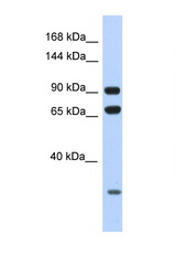 ARMC4 antibody Western blot of HeLa Cell lysate. Antibody concentration 1 ug/ml.  This image was taken for the unconjugated form of this product. Other forms have not been tested.