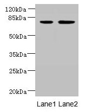 ARMC9 Antibody - Western blot All lanes: ARMC9 antibody at 6µg/ml Lane 1: Jurkat whole cell lysate Lane 2: CEM whole cell lysate Lane 3: A549 whole cell lysate Secondary Goat polyclonal to rabbit IgG at 1/10000 dilution Predicted band size: 92, 76 kDa Observed band size: 76 kDa
