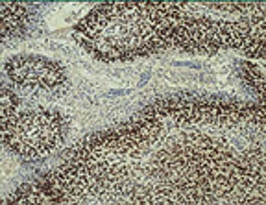IHC of human glioblastoma multiforme utilizing anti-HIF-1 Beta.  This image was taken for the unconjugated form of this product. Other forms have not been tested.