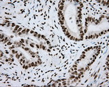 IHC of paraffin-embedded Adenocarcinoma of Human colon tissue using anti-ARNT mouse monoclonal antibody.