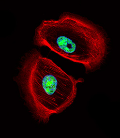 Fluorescent confocal image of SK-BR-3 cell stained with ARNT2 Antibody. SK-BR-3 cells were fixed with 4% PFA (20 min), permeabilized with Triton X-100 (0.1%, 10 min), then incubated with ARNT2 primary antibody (1:25, 1 h at 37°C). For secondary antibody, Alexa Fluor 488 conjugated donkey anti-rabbit antibody (green) was used (1:400, 50 min at 37°C). Cytoplasmic actin was counterstained with Alexa Fluor 555 (red) conjugated Phalloidin (7units/ml, 1 h at 37°C). Nuclei were counterstained with DAPI (blue) (10 ug/ml, 10 min). ARNT2 immunoreactivity is localized to nucleus significantly.