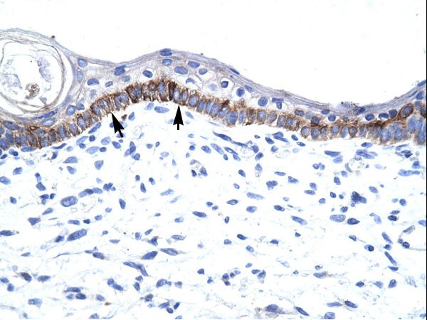 ARNTL / BMAL1 antibody LS-C30625 was used in IHC to stain formalin-fixed, paraffin-embedded human skin.  This image was taken for the unconjugated form of this product. Other forms have not been tested.