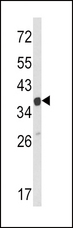 ARPC1A Antibody - Western blot of ARPC1A Antibody in HeLa cell line lysates (35 ug/lane). ARPC1A (arrow) was detected using the purified antibody.