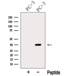 ARPC2 / p34-Arc Antibody - Western blot analysis of extracts of PC-3 cells using ARPC2 antibody. The lane on the left was treated with blocking peptide.