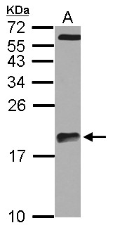 Sample (30 ug of whole cell lysate) A: U87-MG 15% SDS PAGE ARPC5L antibody diluted at 1:1000