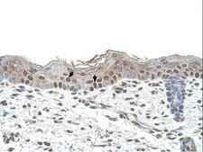 ARRB2 / Beta Arrestin 2 Antibody - ARRB2 / Beta-Arrestin 2 antibody ARRB2(arrestin, beta 2) Antibody was used in IHC to stain formalin-fixed, paraffin-embedded human skin.  This image was taken for the unconjugated form of this product. Other forms have not been tested.