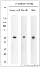 ARRDC1 Antibody - Rabbit antibody to ARRDC1. WB on mouse tissue lysates. Blocking: 1% LFDM for 30 min at RT; primary antibody: dilution 1:1000 incubated at 4C overnight.
