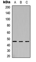 ARSB / Arylsulfatase B Antibody - Western blot analysis of Arylsulfatase B expression in HEK293T (A); NS-1 (B); H9C2 (C) whole cell lysates.