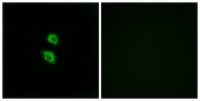 Immunofluorescence analysis of MCF7 cells, using ARSD Antibody. The picture on the right is blocked with the synthesized peptide.