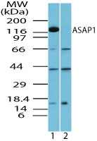 ASAP1 Antibody - Western blot of ASAP1 in mouse brain lysate in the 1) absence and 2) presence of immunizing peptide using Polyclonal Antibody to ASAP1 at 2.0 ug/ml. Goat anti-rabbit Ig HRP secondary antibody, and PicoTect ECL substrate solution, were used for this test.