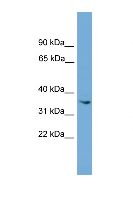 ASB17 antibody LS-C116490 Western blot of ACHN Cell lysate. Antibody concentration 1 ug/ml.  This image was taken for the unconjugated form of this product. Other forms have not been tested.