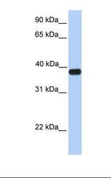 ASB5 Antibody - Fetal muscle lysate. Antibody concentration: 1.0 ug/ml. Gel concentration: 12%.  This image was taken for the unconjugated form of this product. Other forms have not been tested.