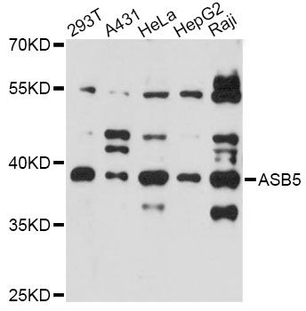 ASB5 Antibody - Western blot analysis of extracts of various cell lines, using ASB5 antibody at 1:3000 dilution. The secondary antibody used was an HRP Goat Anti-Rabbit IgG (H+L) at 1:10000 dilution. Lysates were loaded 25ug per lane and 3% nonfat dry milk in TBST was used for blocking. An ECL Kit was used for detection and the exposure time was 90s.