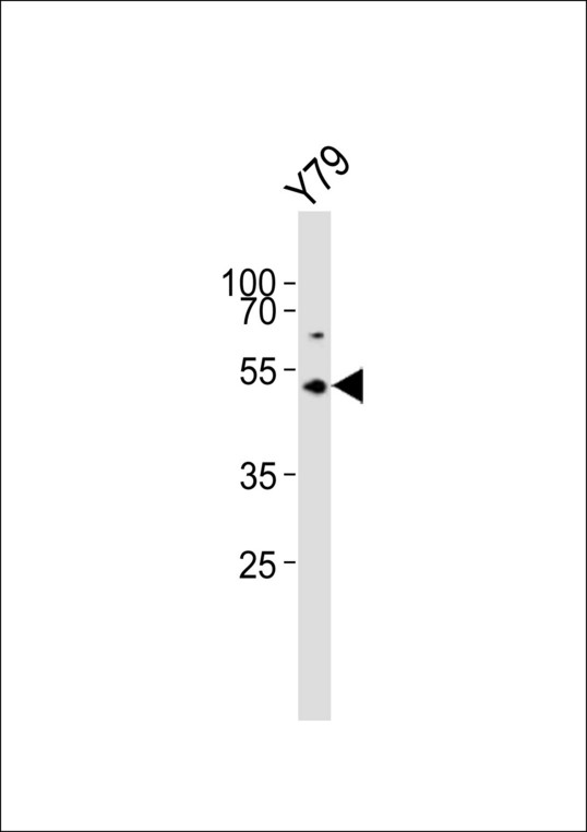ASMT / HIOMT Antibody - Western blot of lysate from Y79 cell line, using ASMT Antibody. Antibody was diluted at 1:1000. A goat anti-rabbit IgG H&L (HRP) at 1:10000 dilution was used as the secondary antibody. Lysate at 20ug.