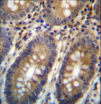 ASMTL Antibody - ASMTL Antibody immunohistochemistry of formalin-fixed and paraffin-embedded human colon tissue followed by peroxidase-conjugated secondary antibody and DAB staining.