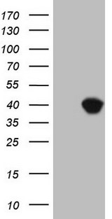 ASPA Antibody - HEK293T cells were transfected with the pCMV6-ENTRY control. (Left lane) or pCMV6-ENTRY ASPA. (Right lane) cDNA for 48 hrs and lysed
