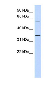 ASPRV1 antibody LS-C102519 Western blot of Fetal Lung lysate.  This image was taken for the unconjugated form of this product. Other forms have not been tested.