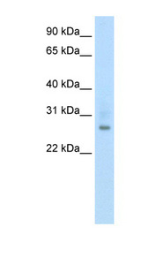 ATF1 antibody LS-B1511 Western blot of Fetal thymus lysate.  This image was taken for the unconjugated form of this product. Other forms have not been tested.