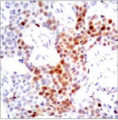 Detection of ATF2 (phospho-Thr69 or 51) in extracts of 3T3 cells untreated or treated with Anisomycin.
