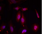 Detection of ATF2 (phosphor-Thr 69 or 51) in methanol-fixed HeLa cells.