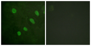 Immunofluorescence analysis of HeLa cells, using ATF2 (Phospho-Ser480) Antibody. The picture on the right is blocked with the phospho peptide.