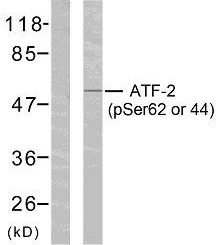ATF2 Antibody - Western blot analysis of lysates from HeLa cells treated with TNF-alpha, using ATF2 (Phospho-Ser62 or 44) Antibody. The lane on the left is blocked with the phospho peptide.
