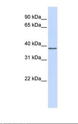 Fetal muscle lysate. Antibody concentration: 1.0 ug/ml. Gel concentration: 12%.  This image was taken for the unconjugated form of this product. Other forms have not been tested.