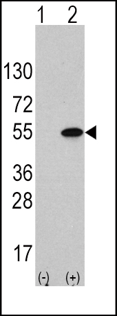 Western blot of ATF4 (arrow) using rabbit anti-ATF4 Antibody (S245). 293 cell lysates (2 ug/lane) either nontransfected (Lane 1) or transiently transfected with the ATF4 gene (Lane 2) (Origene Technologies).