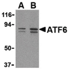 Western blot of ATF6 in MCF7 cell lysate with ATF6 antibody at (A) 0.5 and (B) 1 ug/ml.