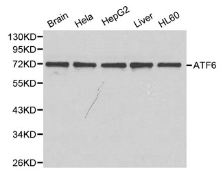 West ernBlot(WB) analysis of ATF6 pAb in extracts from mouse brain tissue, Hela, HepG2, mouse liver tissue and HL60 cells.