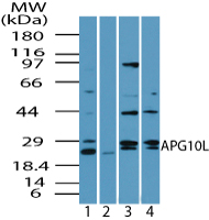ATG10 Antibody - Western blot of APG10L in human brain lysate in the 1) absence and 2) presence of immunizing peptide 3) mouse brain and 4) rat brain using Polyclonal Antibody to APG10L at 2.0 ug/ml, 6.0 ug/ml and 4.0 ug/ml, respectively. Goat anti-rabbit Ig HRP secondary antibody, and PicoTect ECL substrate solution, were used for this test.