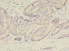 ATG2B Antibody - Immunohistochemistry of paraffin-embedded human gastric cancer using antibody at dilution of 1:100.
