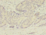 Immunohistochemistry of paraffin-embedded human gastric cancer using ATG2B Antibody at dilution of 1:100