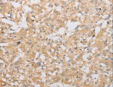 ATG9A Antibody - Immunohistochemistry of paraffin-embedded Human brain using ATG9A Polyclonal Antibody at dilution of 1:40.