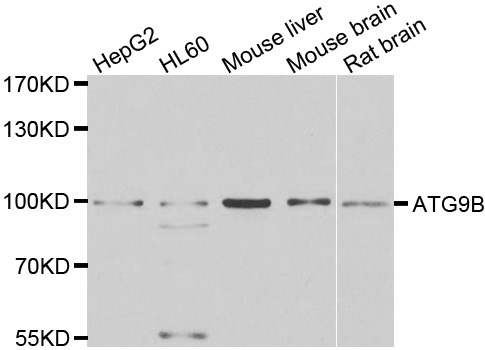 ATG9B Antibody - Western blot analysis of extracts of various cell lines.