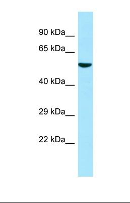 Western blot of Human 293T. ATL3 antibody dilution 1.0 ug/ml.  This image was taken for the unconjugated form of this product. Other forms have not been tested.