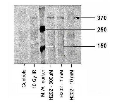 Western blot of ATM-kinase, using LS-C2763. Sample: Irradiated or peroxidated human fibroblasts.  This image was taken for the unconjugated form of this product. Other forms have not been tested.