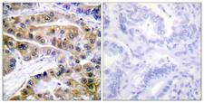 ATP1A1 Antibody - Immunohistochemistry analysis of paraffin-embedded human lung carcinoma, using ATPase (Phospho-Ser16) Antibody. The picture on the right is blocked with the phospho peptide.