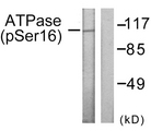 Western blot analysis of lysates from 293 cells treated with PMA 125ng/ml 30', using ATPase (Phospho-Ser16) Antibody. The lane on the right is blocked with the phospho peptide.