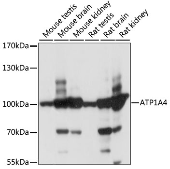 ATP1A4 Antibody - Western blot analysis of extracts of various cell lines, using ATP1A4 antibody at 1:1000 dilution. The secondary antibody used was an HRP Goat Anti-Rabbit IgG (H+L) at 1:10000 dilution. Lysates were loaded 25ug per lane and 3% nonfat dry milk in TBST was used for blocking. An ECL Kit was used for detection and the exposure time was 1S.