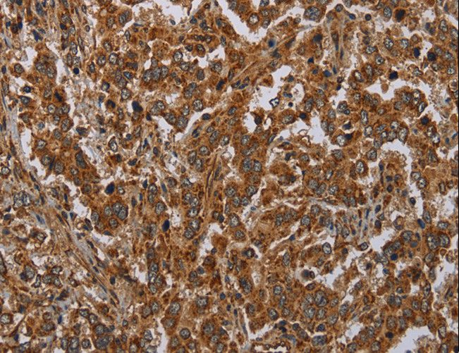 ATP2A1 / SERCA1 Antibody - Immunohistochemistry of paraffin-embedded Human brain using ATP2A1 Polyclonal Antibody at dilution of 1:30.