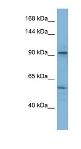 ATP2A1 / SERCA1 Antibody - ATP2A1 / SERCA1 antibody Western blot of THP-1 cell lysate. This image was taken for the unconjugated form of this product. Other forms have not been tested.