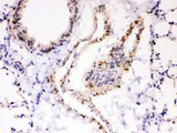 ATP2A2 antibody IHC-paraffin: Mouse Lung Tissue.