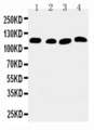 WB of ATP2A2 / SERCA2 antibody. All lanes: Anti-ATP2A2 at 0.5ug/ml. Lane 1: Rat Skeletal Muscle Tissue Lysate at 40ug. Lane 2: Rat Kidney Tissue Lysate at 40ug. Lane 3: PANC Whole Cell Lysate at 40ug. Lane 4: SMMC Whole Cell Lysate at 40ug. Predicted bind size: 115KD. Observed bind size: 115KD.